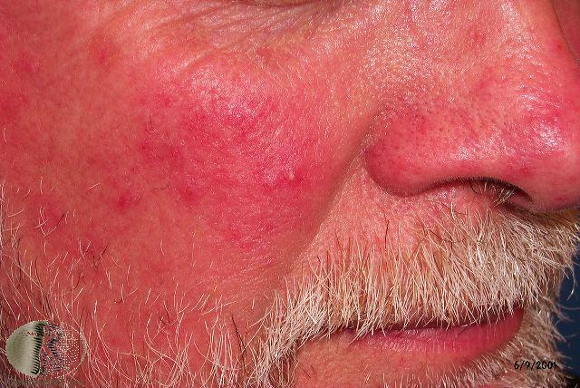 acne vulgaris dermnet nz - 640×428